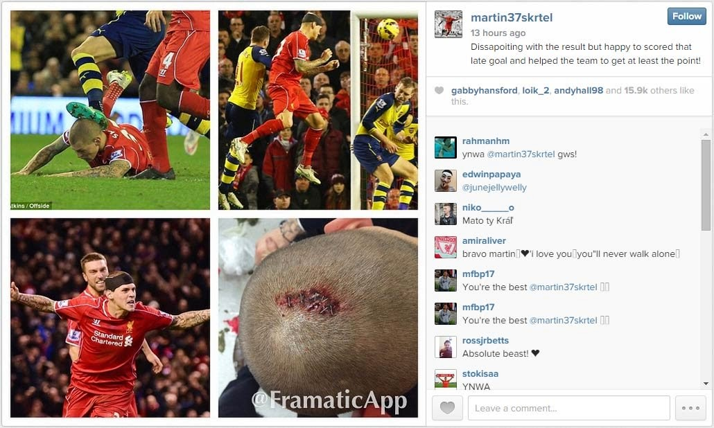 Martin Skrtel Reveals He Had To Have His Head Stapled